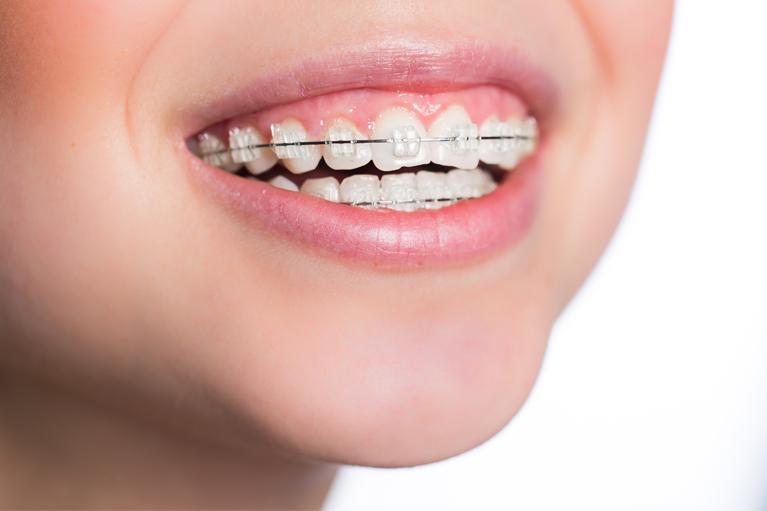 矯正治療=抜歯?