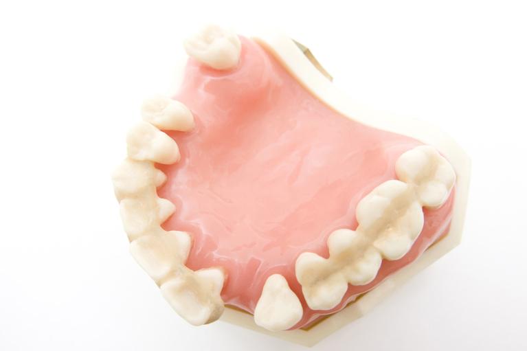 歯を失うことに繋がります