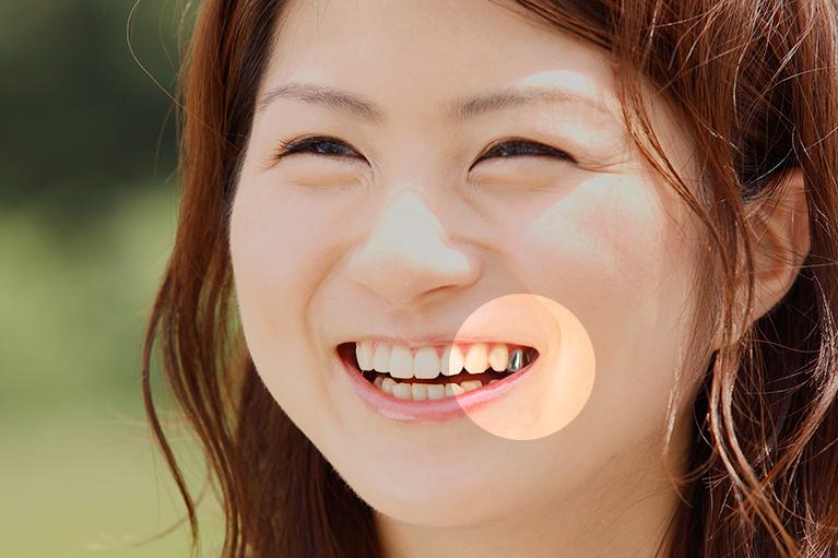 口元の審美性を損なう01